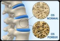Comment garder des os en béton ?