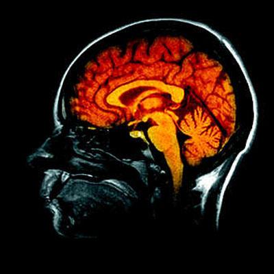 Le Cerveau et ses Automatismes : Le Pouvoir de L'inconscient
