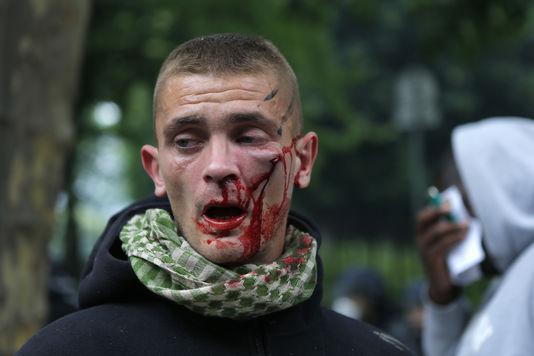 Un manifestant en sang, mardi 14 juin 2016, lors de la journée nationale de mobilisation contre la loi travail.