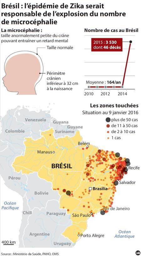 Au Brésil, alors que la microcéphalie touchait jusque-là 164 enfants par an en moyenne, le nombre de cas a grimpé à 3.530 en 2015. © Idé