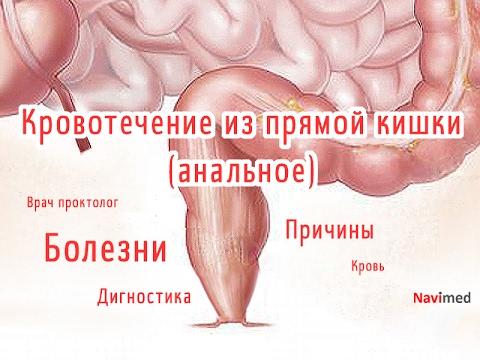 Кровотечение из прямой кишки при геморрое лечение