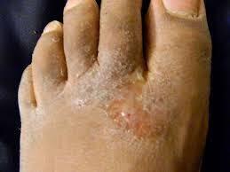 Nama obat eksim manjur rontokan eksim di kaki dengan cepat