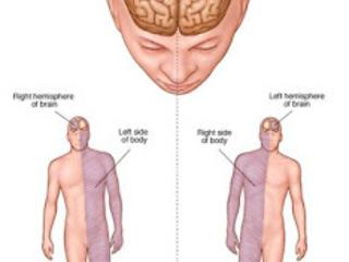 Obat Stroke Ringan Sebelah Kanan, obat alternatif stroke ringan, obat sakit stroke ringan, obat stroke hemoragik, cara mengatasi stroke ringan alami, pantangan penyakit stroke ringan, mengobati stroke secara tradisional