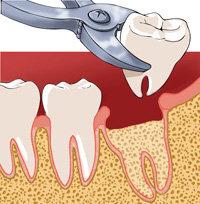 """Résultat de recherche d'images pour """"arrachage de dent"""""""