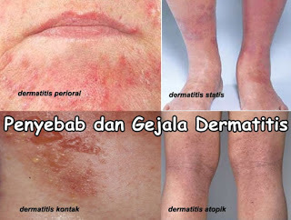 Cara mengatasi Alergi Kulit Wajah Gatal Bintik Merah