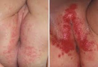 Obat penyakit kulit gatal di selangkangan atau pangkal paha
