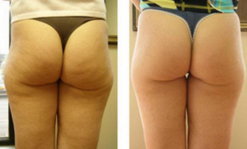 Целлюлит до и после лечения