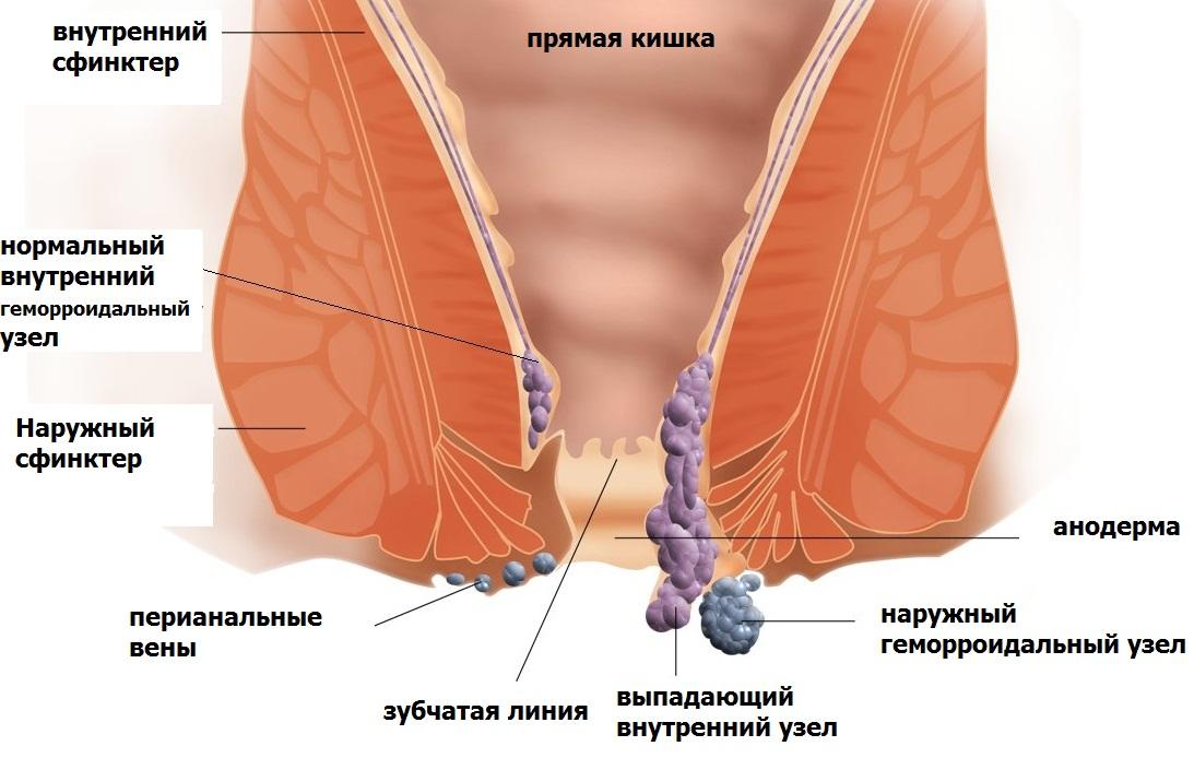 Геморрой внутренний у кормящей мамы лечение