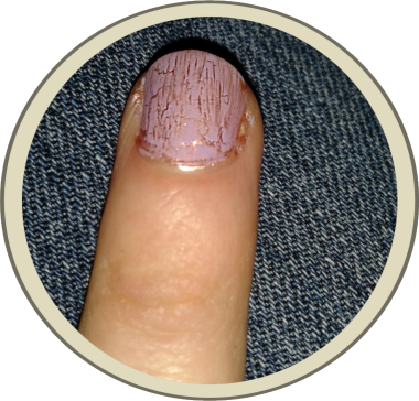 Rock-top Nail Lacquer