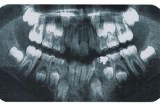 Diaporama sur les dents au CP