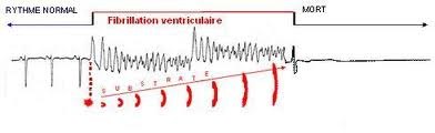 fibrillation-ventriculaire