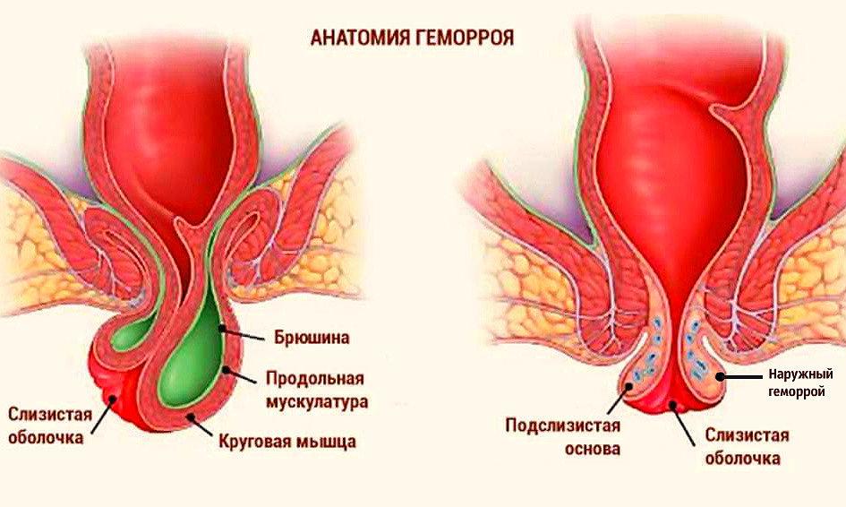 Геморрой кровоточит лечение в домашних условиях у женщин