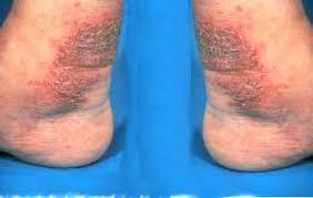Obat paling manjur untuk menghilangkan eksim menahun di kaki