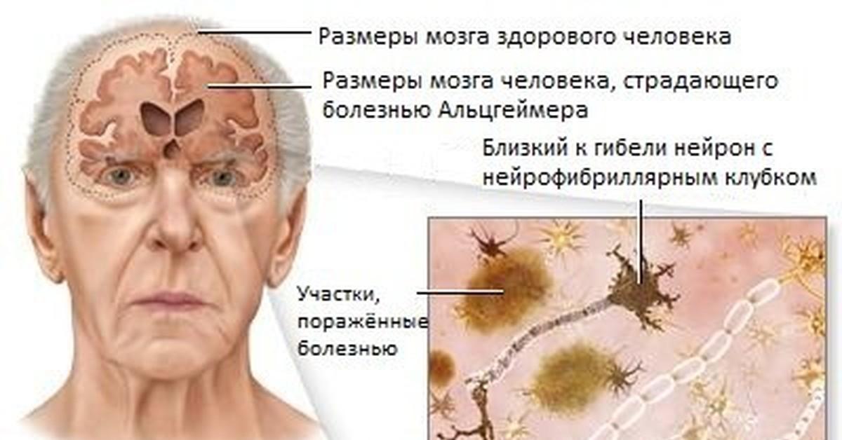 Признаки скорой смерти у больных сахарным диабетом и болезнь альцгеймера