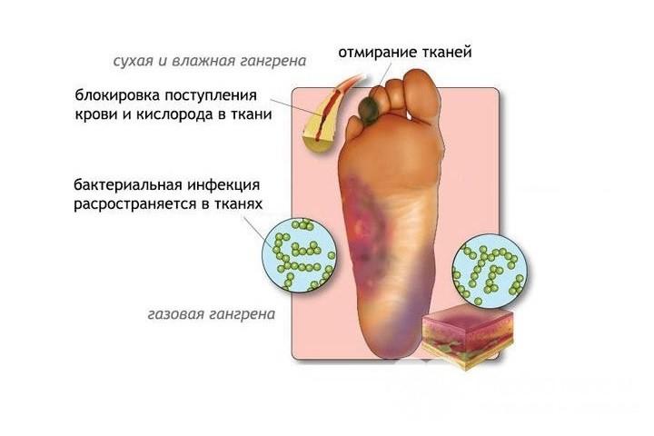 Усыхают ноги при диабете