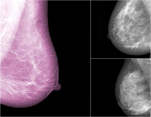 Lutte contre le cancer du sein : qu'est-ce qu'il ne faut pas faire ?