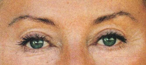 Beauté 1986