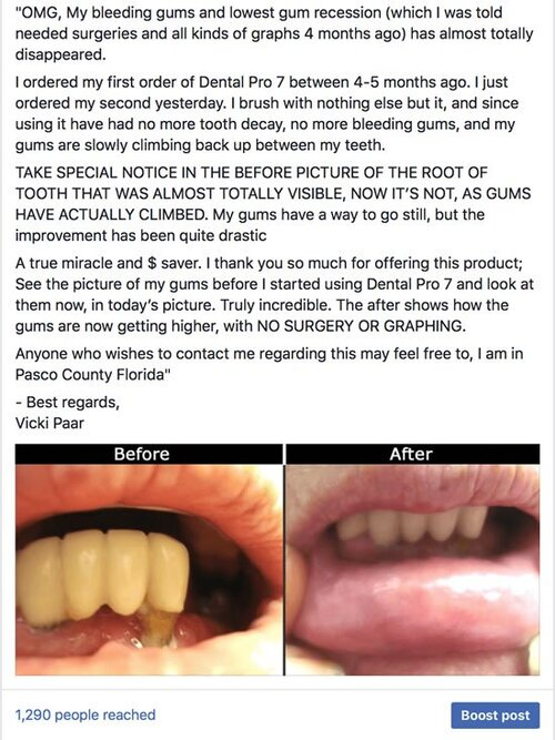 How To Reverse Gum Loss?