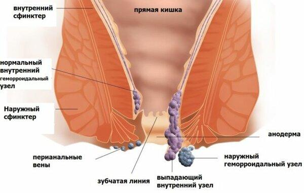 Лечение наружного геморроя в домашних условиях после родов