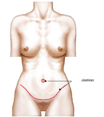 La chirurgie de la paroi abdominale : L'abdominoplastie.