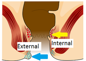 internal eksternal
