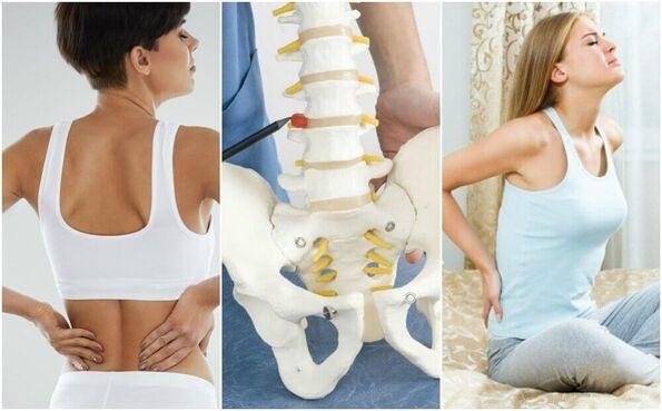 8 causes médicales des douleurs lombaires