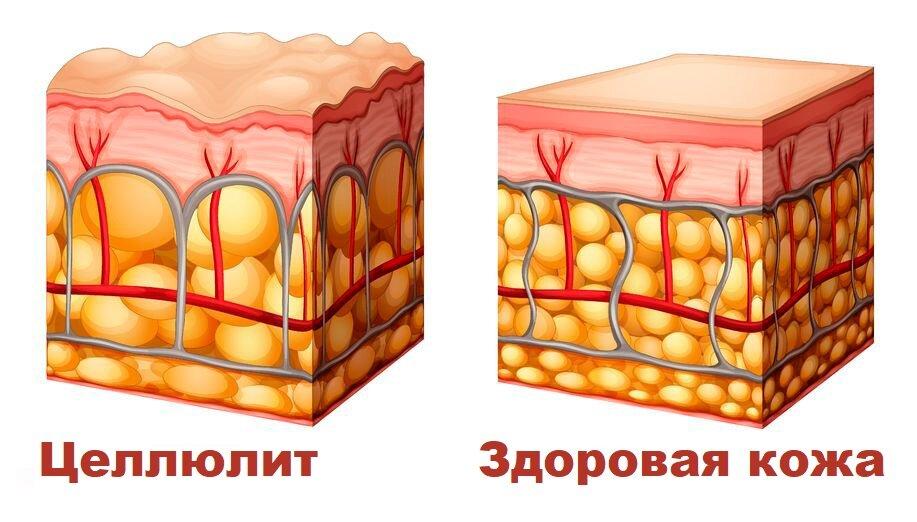 Проблема целлюлита и лишнего веса
