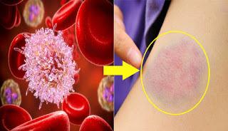 Kanker Darah: Gejala, Penyebab, Diagnosis, dan Pengobatan