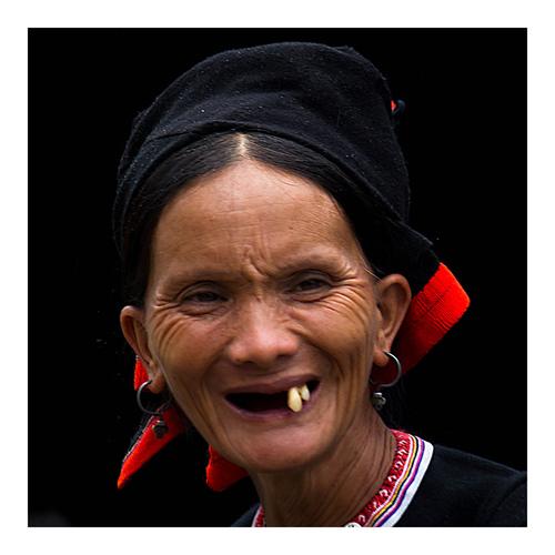 Dents laquées
