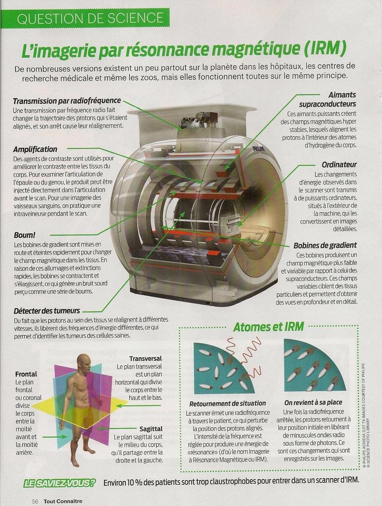 Question de Science:  L'Imagerie par résonnance magnétique (IRM)