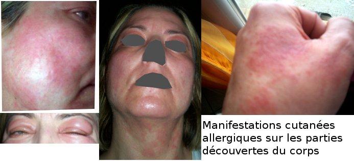 maquillage sans parfum d 39 une peau allergique le teint beaut des peaux allergiques atopiques. Black Bedroom Furniture Sets. Home Design Ideas