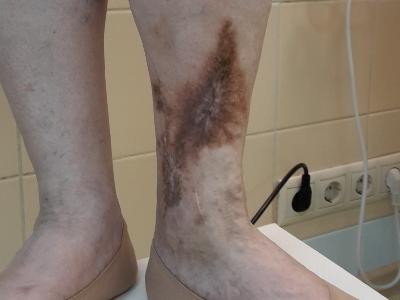 Как лечить потертость на ноге при диабете