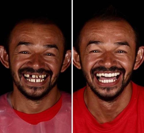 Il redonne un sourire aux démunis