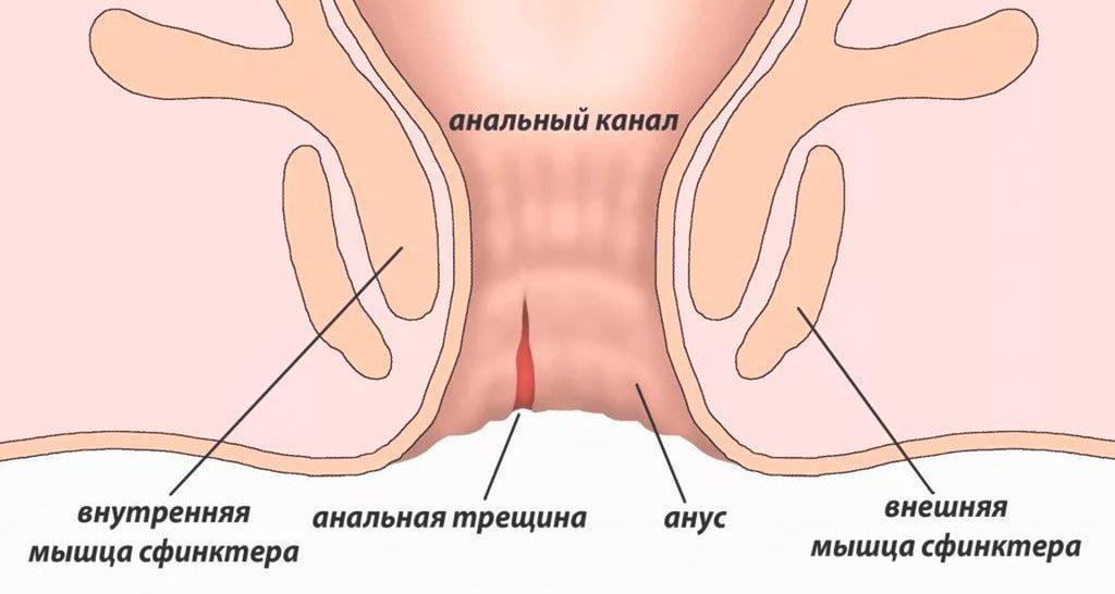 Геморрой запор лечение трещина