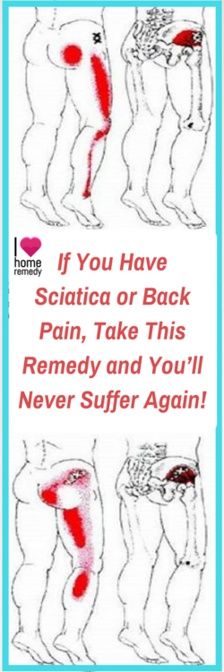If You Have Sciatica or Back Pain.