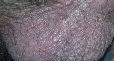 Obat kulit zakar kering dan mengelupas yang ampuh dan alami