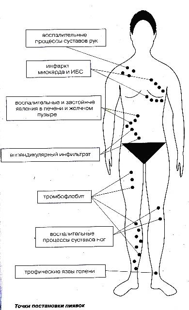 Пиявки на геморроидальные узлы схема