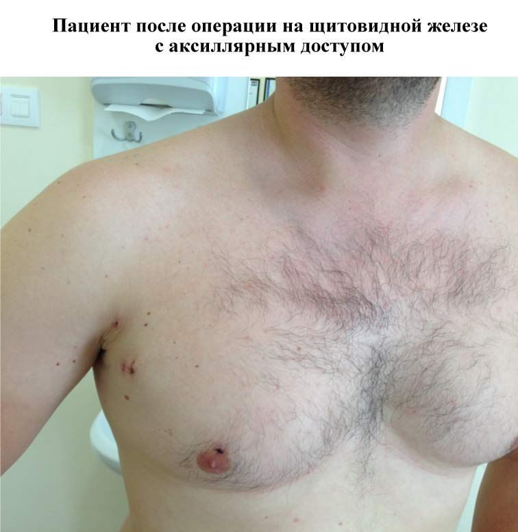 Щитовидная железа и геморрой