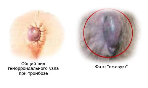 Тромбоз наружного геморроидального узла
