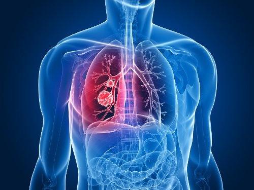 Les 9 signes du cancer du poumon qu'il faut connaître