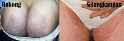 Penyakit Eksim Basah Di Selangkangan Dan Pantat
