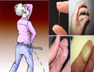 Obat keluar cairan kuning dari alat kelamin pria bercampur darah
