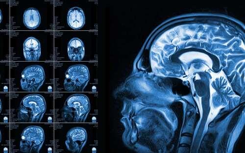 Un tétraplégique retrouve l'usage de son bras grâce à une neuroprothèse