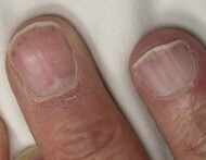 0,Infos Ongles bizarres 3,stries,fissures