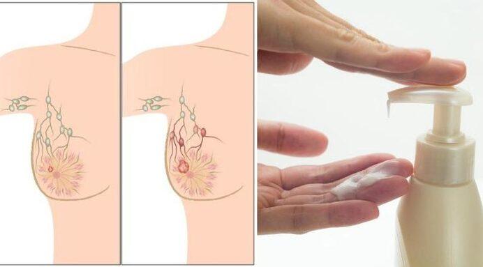 cancer-sein-parabènes