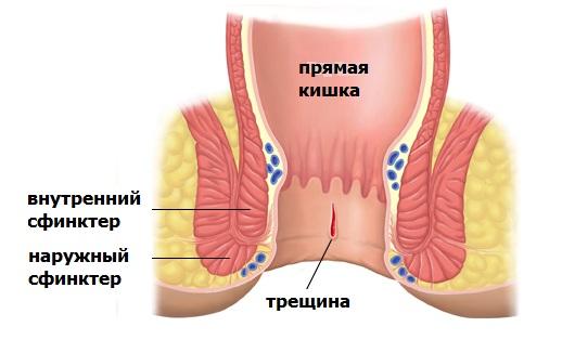 Методы лечения геморроя и анальных трещин