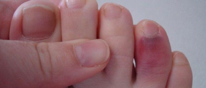 Посинение ногтей при сахарном диабете