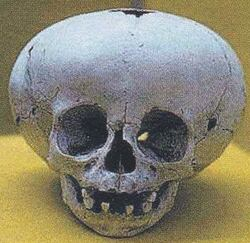 Crânes de forme inconnue