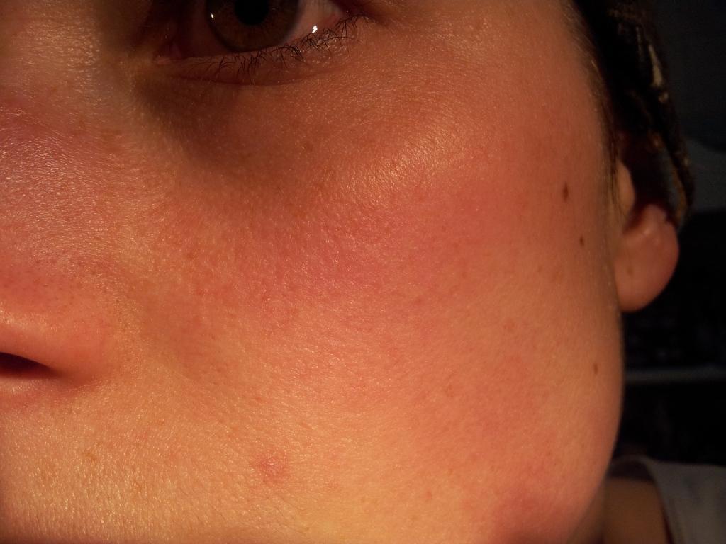 miel de manuka cicatrisation