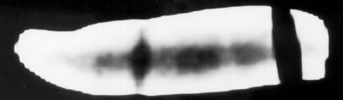 Radiographie par scanner du doigt